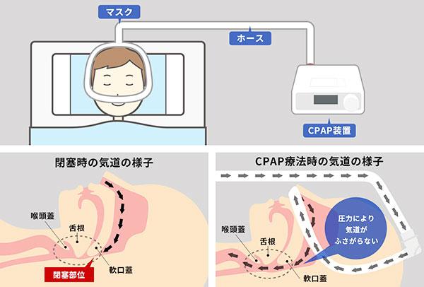CPAP治療